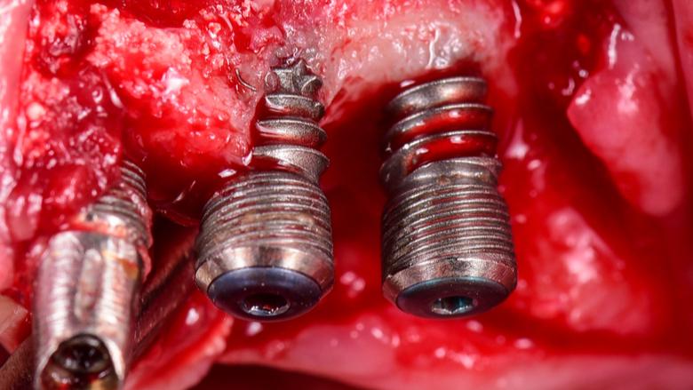 Preventing peri-implant disease—free webinar
