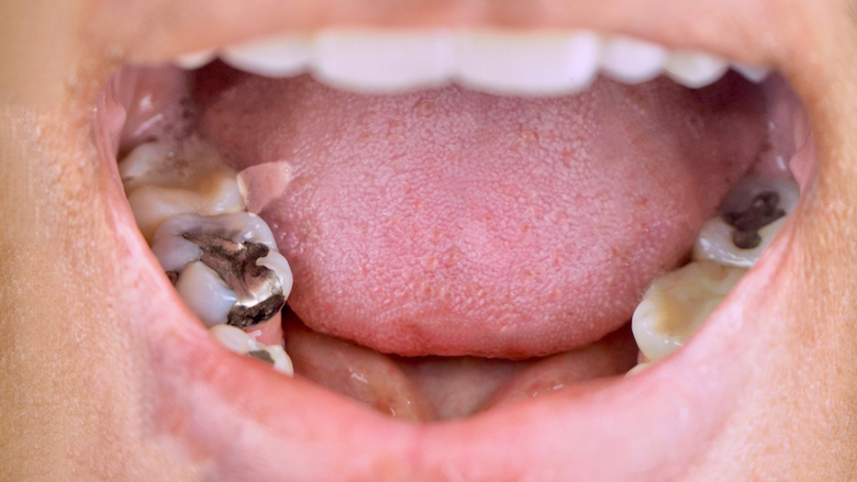 "BDA Northern Ireland labels dental amalgam phase-out ""unworkable"""