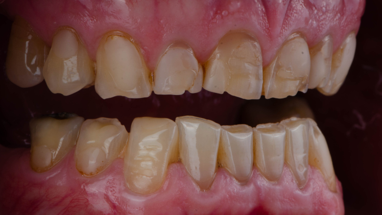 Research provides new insights into how acid damages teeth